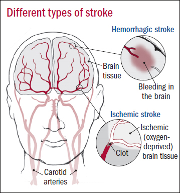 Stroke, Medical Clinic, North York